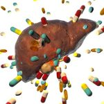5 Common Meds That Cause Liver Damage